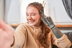 Portrait of excited cheerful smiling young pretty woman with artificial limb making selfie photo and showing v-sign with two fingers while feeling real emotions. Stock photo