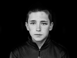 Portrait of middle school age boy with bruises all over his face. Black eye and bruised cheek and forehead.