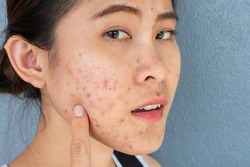 Portrait of ugly Asian woman having problems of acne inflammation (Papule and Pustule) on her face. Conceptual of problems on woman skin.