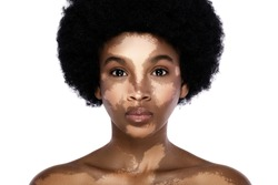 Portrait of young and beautiful black woman with vitiligo skin disorder