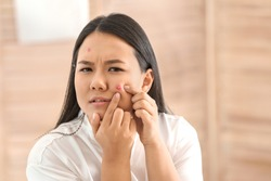 Portrait of young Asian woman with acne problem squishing pimples in bathroom
