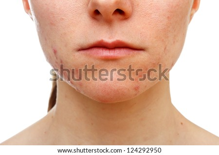 Portrait of young girl with skin problem on isolated white background