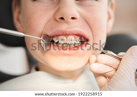Positive smiley little boy having his braces checked. Close-up portrait of smiling teenage boy with braces against dentist sitting in clinic. Teenage boy with braces being examined by dentist wearing Photo stock ©