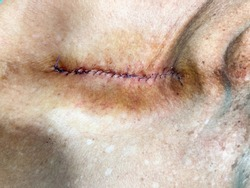 post operation excision and suture wound