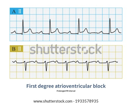 PR interval was prolonged and QRS wave was not dropped when atrioventricular block was once performed. Photo stock ©