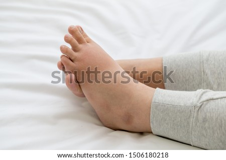 Pregnant women with swelling feet, pain foot and lying on bed in the room. Swollen feet and fetal poisoning or toxicity concept Stockfoto ©