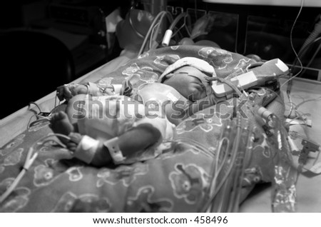 Premature baby boy, born six & half weeks premature, in hospital Neo Natal Intensive Care Unit, undergoing phototherapy with ultra violet lighting to treat Jaundice condition