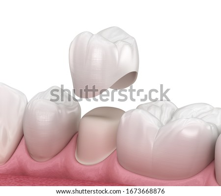 Preparated premolar tooth and dental crown placement. Medically accurate 3D illustration Photo stock ©