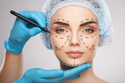Pretty girl with dark eyebrows wearing blue medical hat at studio background, doctor's hands wearing blue gloves drawing perforation lines on face, plastic surgery concept.
