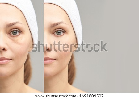 Pretty mature girl. Before and after portrait. Anti wrincle healthy therapy. Black circle under eyes. Collagen cream. Cosmetology rejuvenation. Beauty model. Procedure result. Photo stock ©