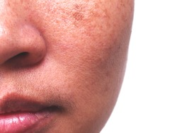 Problem Skincare and  health concept. Wrinkles, melasma  , Dark spots, freckles , dry skin,pigmentation  on face middle female.