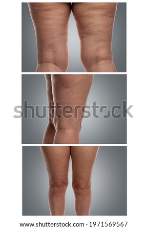 Problematic female legs with excess weight, cellulite and veins. Gray background. Vertical. Collage. Сток-фото ©