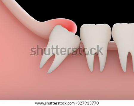 Problems caused by impacted wisdom teeth include.Infection(rendering)