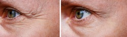 Procedure for the rejuvenation of wrinkles around the eyes, crow