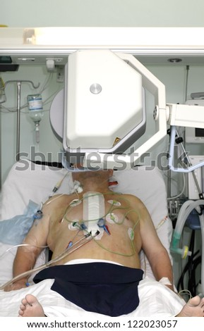 production of X-rays in the ICU