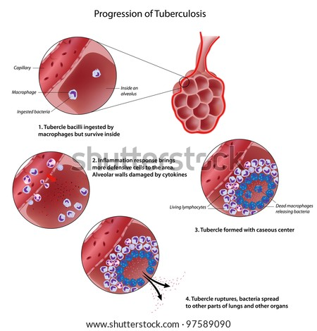 Progression of pulmonary tuberculosis