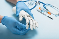 Prosthetics hands at doctor in clinic. Artificial limb.