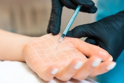 Protection from perspiring, hyperhidrosis. Doctor makes injections of botulinum toxin on the client's palm with white drawn grid. Close up.