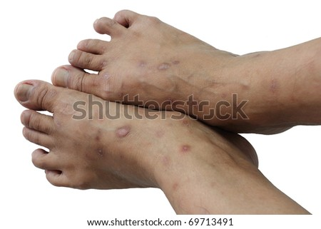 Psoriasis is a chronic non-contagious disease that affects mainly the skin