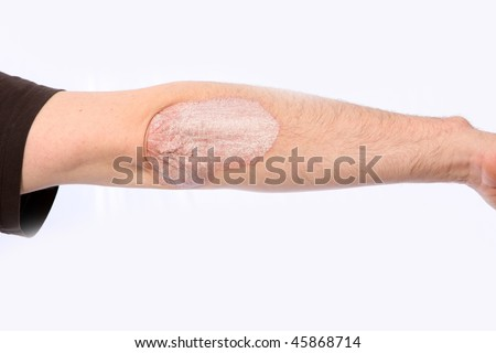 Psoriasis on the elbow, the arm is stretched out