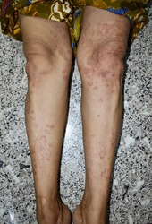 Psoriasis or Fungal Infection called Tinea Corporis on lower limbs of Southeast Asian, Burmese adult woman. It is a superficial dermatophyte infection limited to the glabrous skin of the leg.