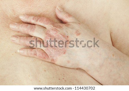 Psoriasis vulgaris is an autoimmune disease that affects the skin, detail photography for mainly medical magazines