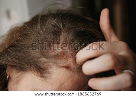 Psoriasis Vulgaris, psoriatic skin disease in head hair, skin patches are typicaly red, itchy, and scaly. Woman furiously scratching her head