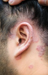 Psoriatic skin disease around left ear and hairline which is typically red, itcing and flaky.