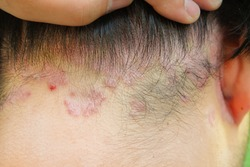 Psoriatic skin disease under the hairline which is typically red, itcing and flaky.
