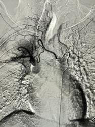 Pulmonary angiogram during Bronchial Arteries Embolization procedure.