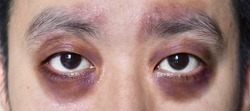 Raccon eyes or periorbital ecchymosis or panda eye sign in Southeast Asian young male patient. It is a sign of basal skull fracture or subgaleal hematoma.