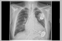 Radiograph left side of the chest. Heart with implanted pacemaker system. Below are the pump of the heart assist system.