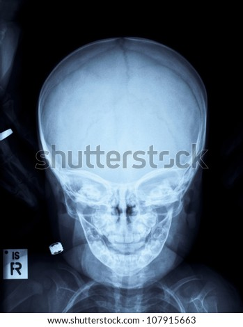 Radiograph of a child\'s head after accident