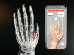 Radiography of a hand showing the personal microchip controlled from the smartphone. Future technology for the control of people.