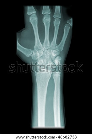 radiography of wrist isolated on black background #48682738
