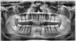 Rare Full Dental X Ray with fully Impacted Wisdom Tooth / Teeth