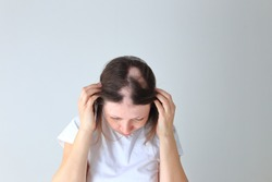 Real alopecia areata in a young girl. A bald head in a person. Diffuse alopecia. Androgenic alopecia. Hair loss. Bald spots on the head. Trichology
