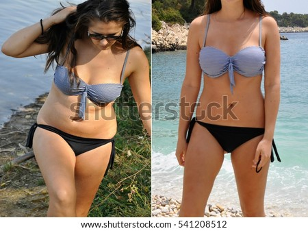 Real before and after weight loss photo of woman's body in bikini. Unprofessional, amateur natural before and after photos, which can be used as illustrative for advertising slimming products #541208512