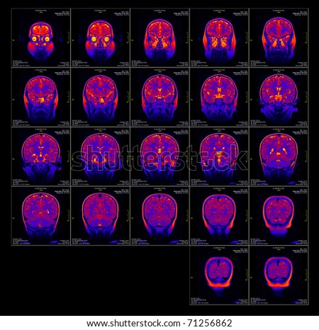 Real brain MRI slide of a girl. Patient's and clinics names cloned out, minimal editing to save fine details - stock photo