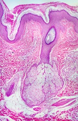 real Human sebaceous and sweat gland photomicrograph panorama as seen under the microscope. 10x objective.
