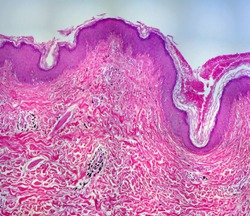 real tattoo photomicrograph shows the tattoo ink, (the black spots) in the dermis of human skin. 10x objective. Panorama.