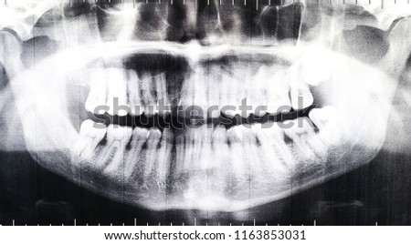 Real X-ray image of teeth. Roentgenogram of pathological teeth. Deformation of teeth.