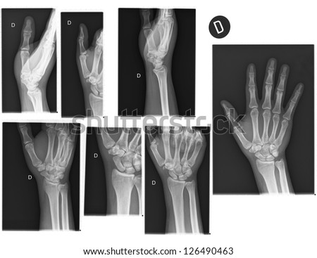 Real X-rays of the Hand and wrist. (broken wrist)