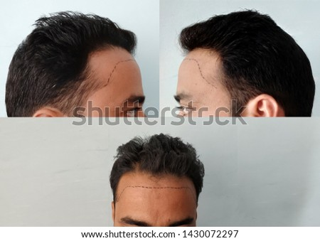 Receding hairline is becoming major problem in men. its may be occur due to various types of factor like bad lifestyle, lack of sleep, stress, nutritional deficiency and some heredity factor.
