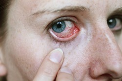 red eyes after hay fever attack