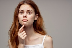 redheaded woman shows fingers on acne on her face