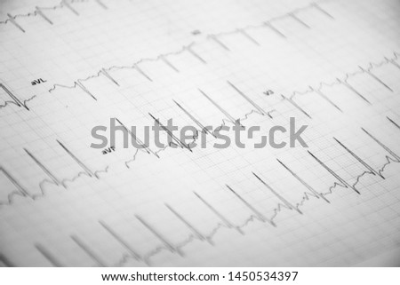 regular heartbeat on white background #1450534397