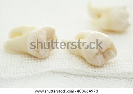 Removed wisdom tooth on white #408664978