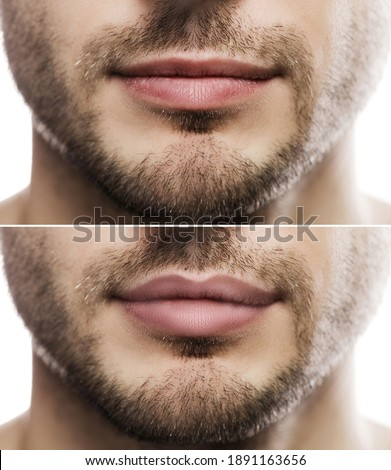 Result of lip augmentation. Male lips  before and after filler injection. Foto stock ©