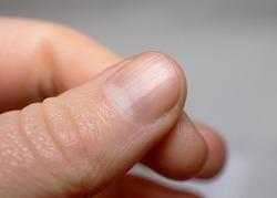 Ridged fingernail of a thumb finger of a caucasian woman with vertical ridges. Very short cut nails.